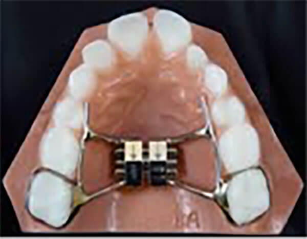 Retainer After Expander - #GolfClub